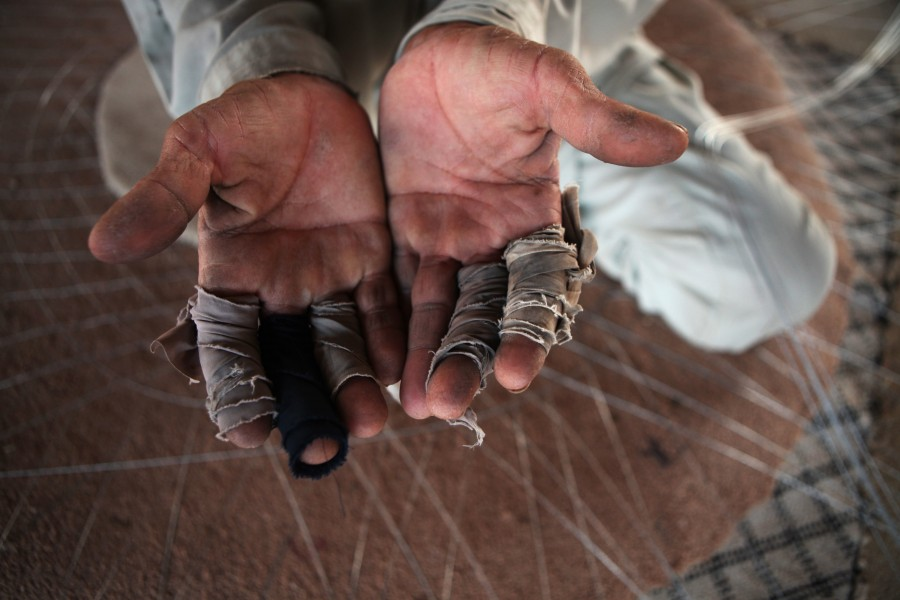 Tape protects the fingers of a worker making fishing nets on Delma Island, United Arab Emirates.